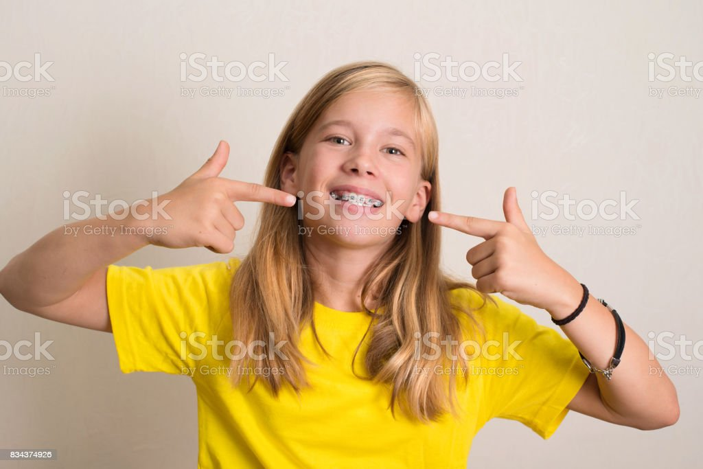 Happy teen girl in yellow t-shirt showing her dental brace. stock photo