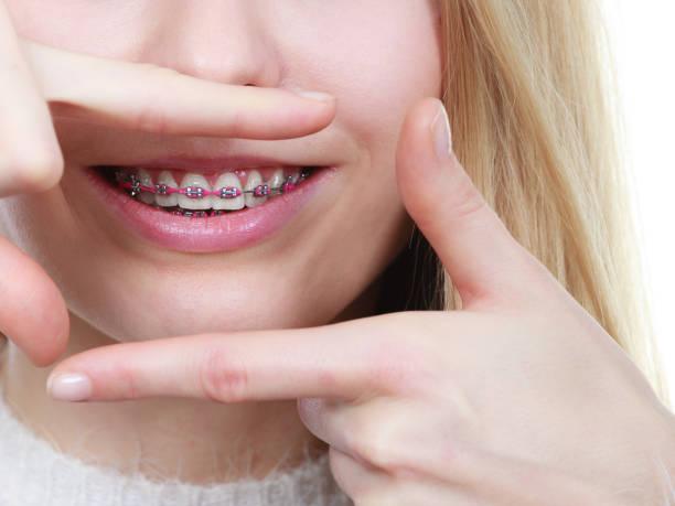 glückliche frau zeigt ihre klammern an den zähnen - kieferorthopäde stock-fotos und bilder