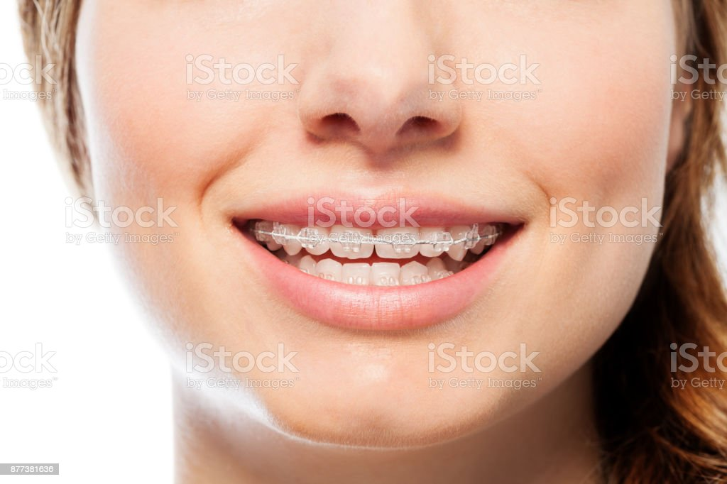 Happy woman's smile with orthodontic clear braces stock photo