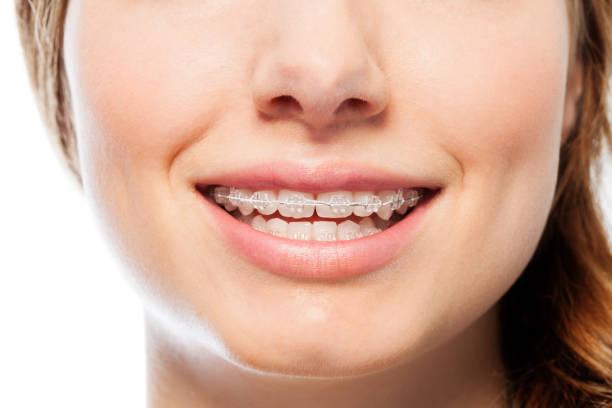 矯正の明確なブレースを幸せな女の笑顔 - 矯正歯科医 ストックフォトと画像