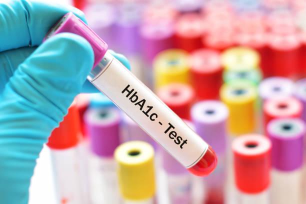 hba1c-test - hyperglycemia stock-fotos und bilder