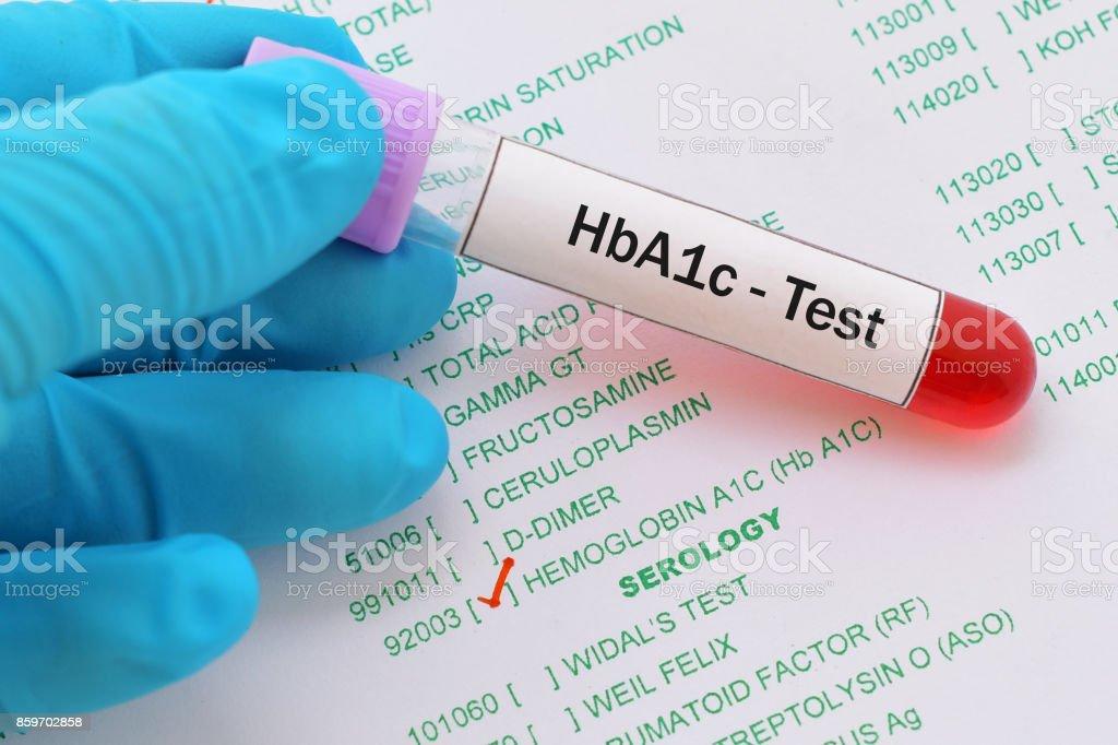 HbA1c test stock photo
