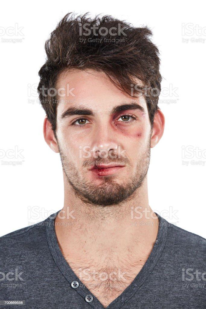 He got more than just his ego bruised stock photo