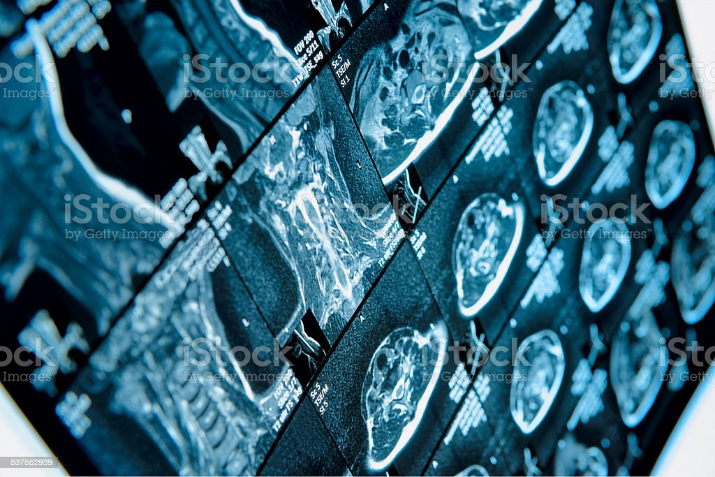 Head and neck MRI scan, anonymized stock photo