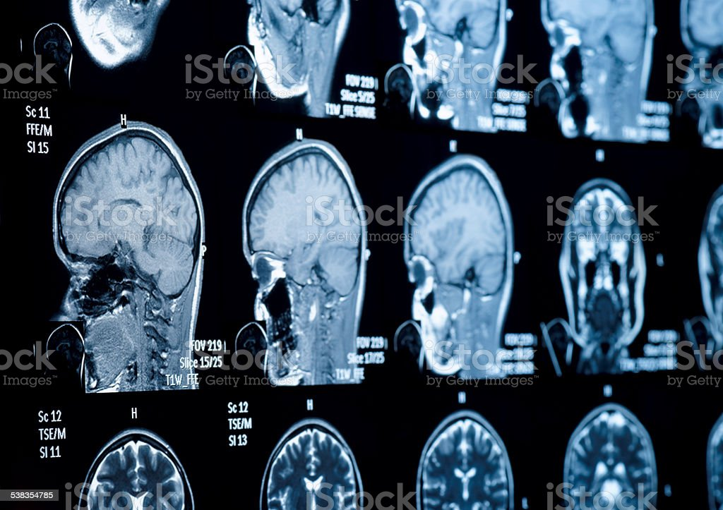 Head And Neck Mri Scan Anonymized stock photo 538354785 | iStock