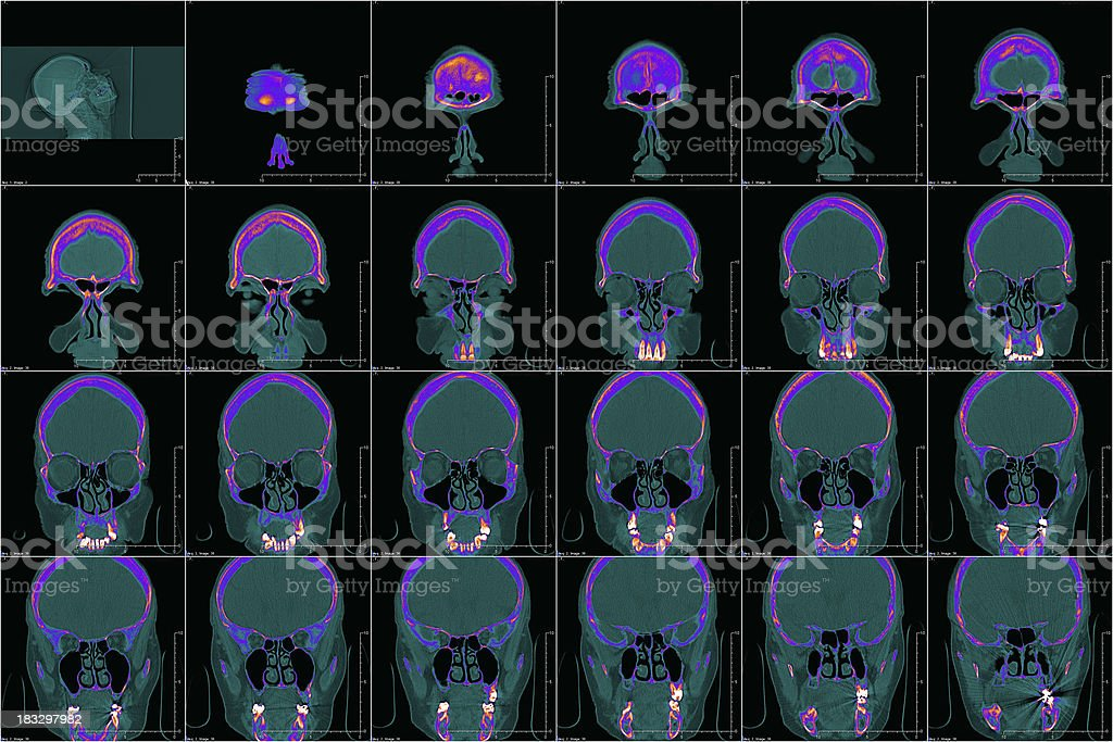 head (sinus) in color CT royalty-free stock photo