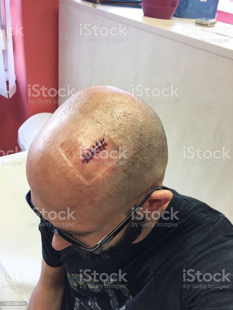 Man with head injury waiting for a new bandage.