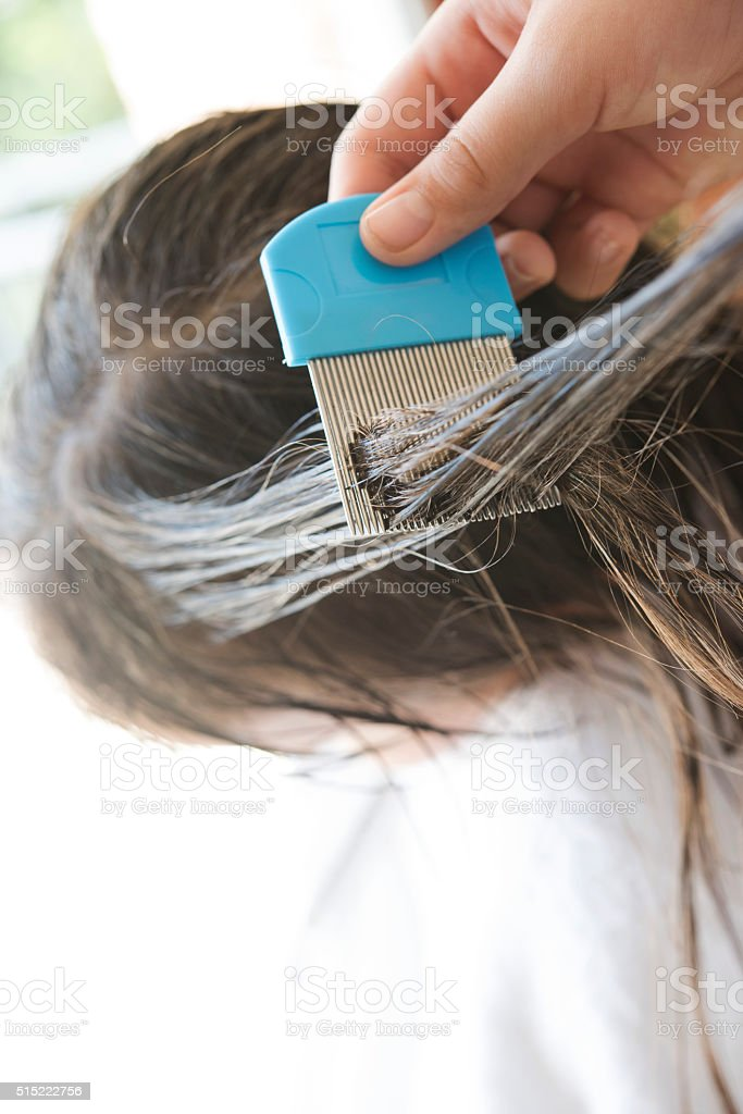 Head lice treatment stock photo