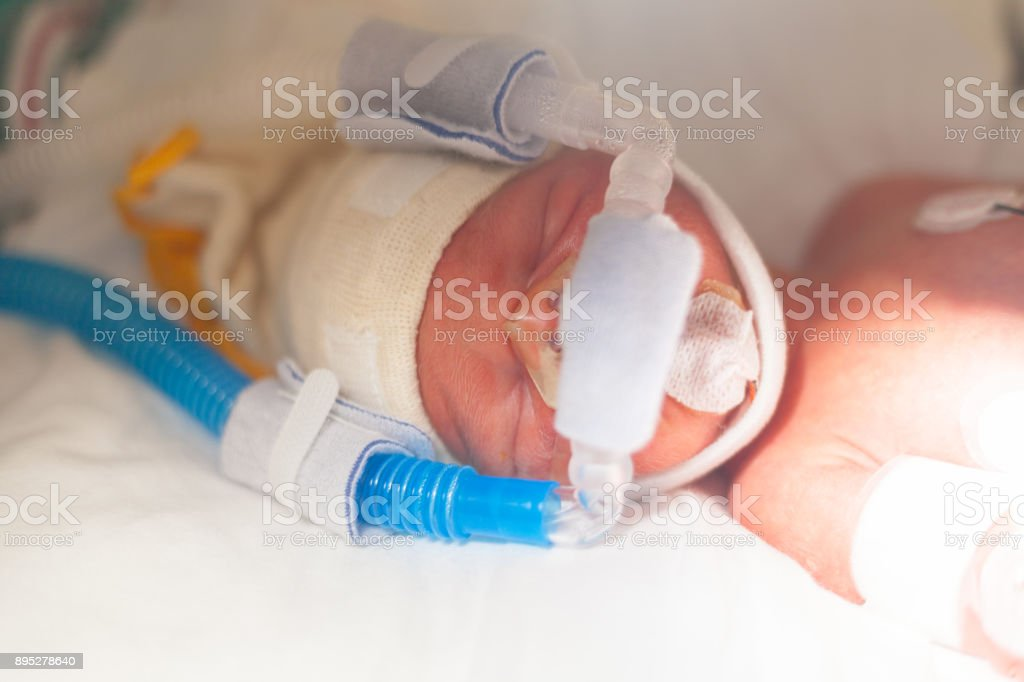 Premature baby boy in an incubator.