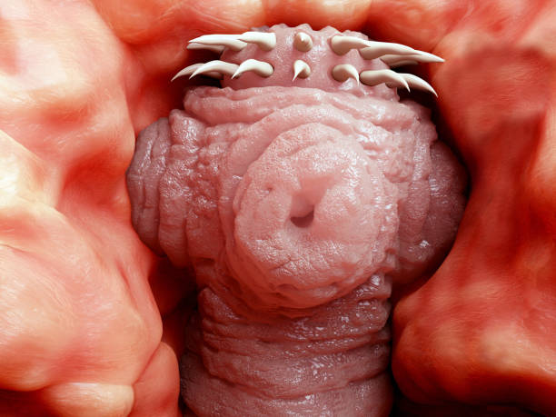 Head of a tapeworm attached to the wall of a human intestine stock photo