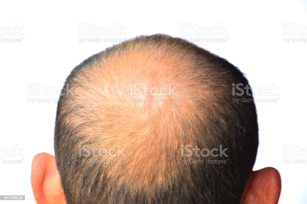 Head of man lose one's hair, glabrous on his head stock photo