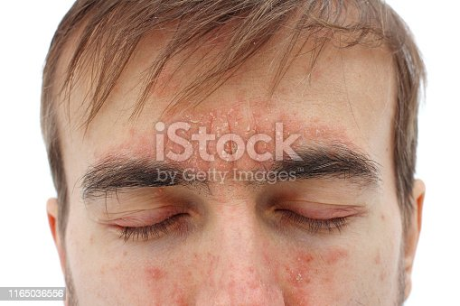 head of sick man with closed eyes with red allergic reaction on skin, redness and peeling psoriasis on nose, forehead and cheeks, seasonal skin problem, close-up, white background