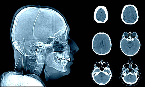Head on CT scans stock photo