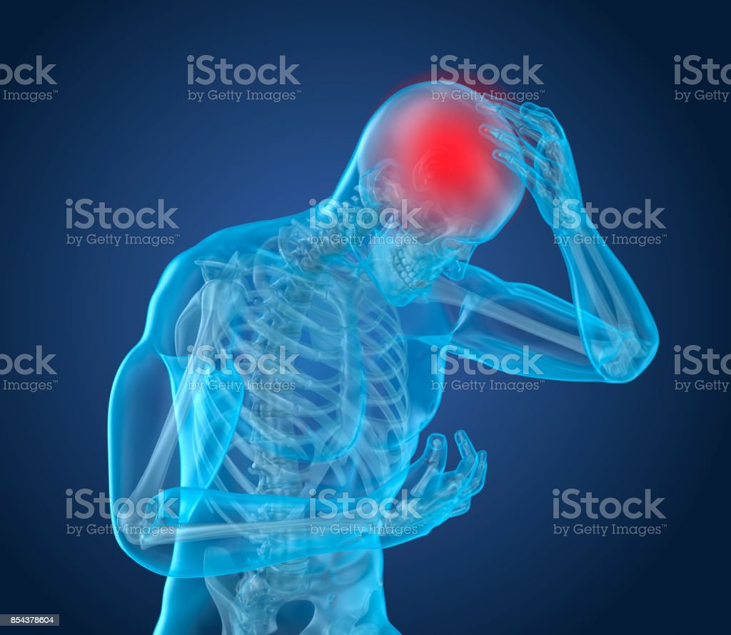Head pain Attack, man suffering from brain pain. 3D illustration stock photo