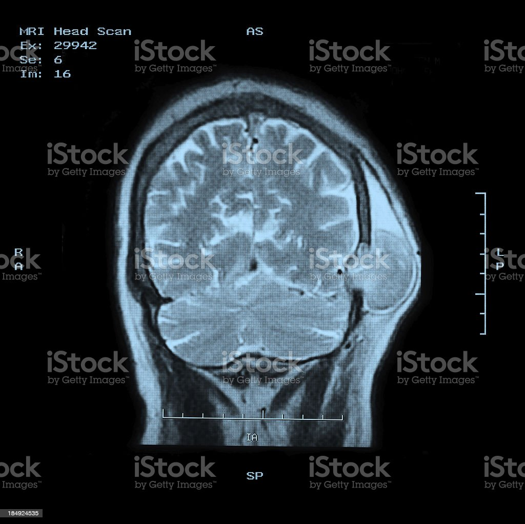 MRI Head Scan Back view with clear tumor royalty-free stock photo