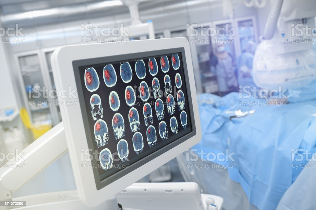 Kopf-Scan auf dem Monitor im Operationssaal – Foto
