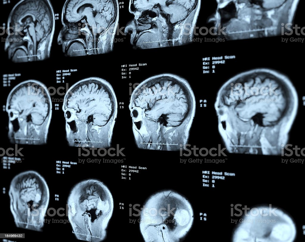 MRI Head Scan Perspective stock photo
