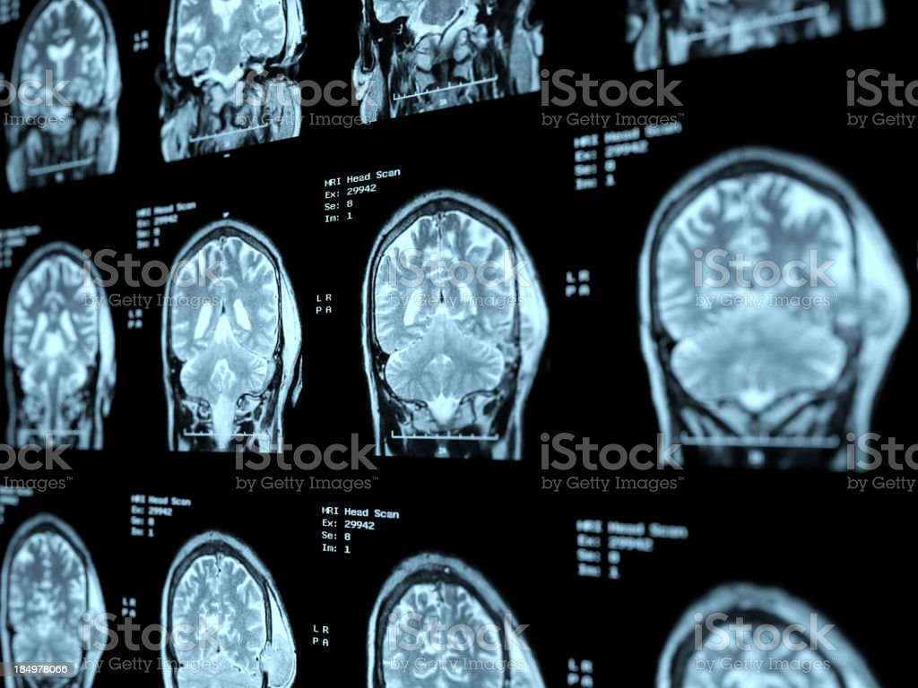 MRI Head Scan Perspective royalty-free stock photo
