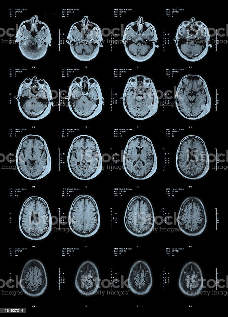 MRI Head Scan stock photo
