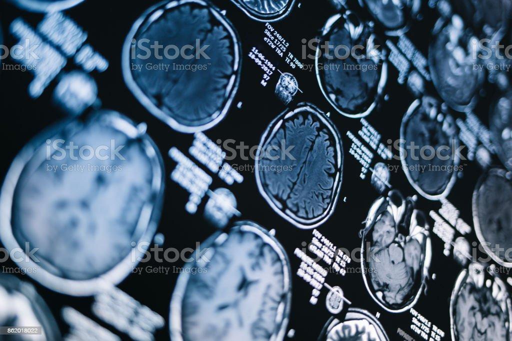 MRI head scan stock photo