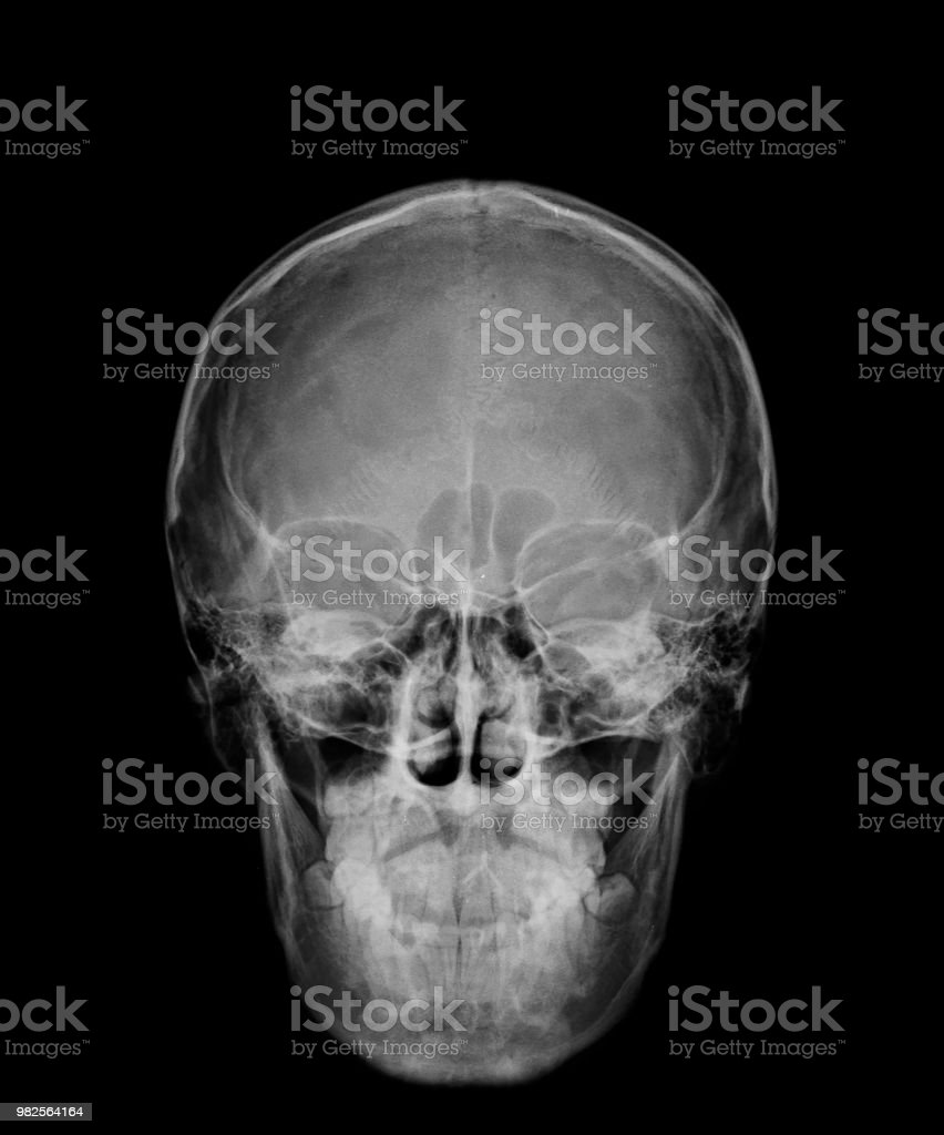 Head Skull Xray Front View Stock Photo & More Pictures of Anatomy ...