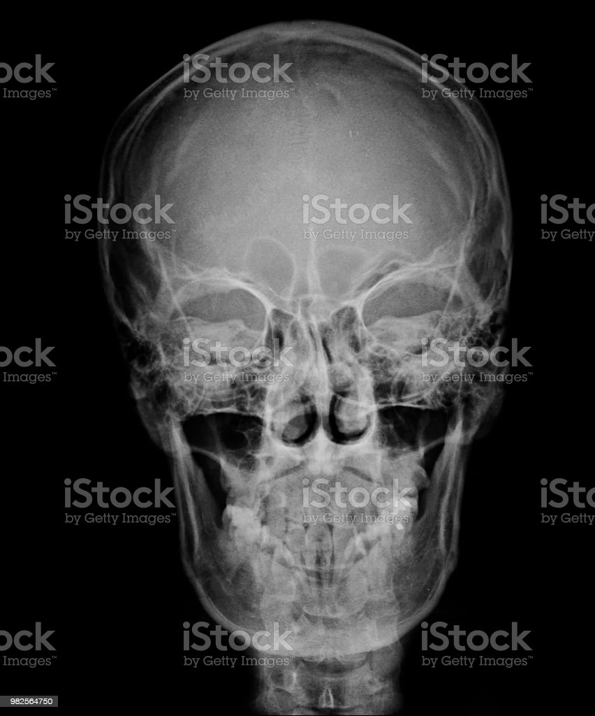 Head Skull Xray Front View Stock Photo & More Pictures of ... Skull X Ray Views Merrills
