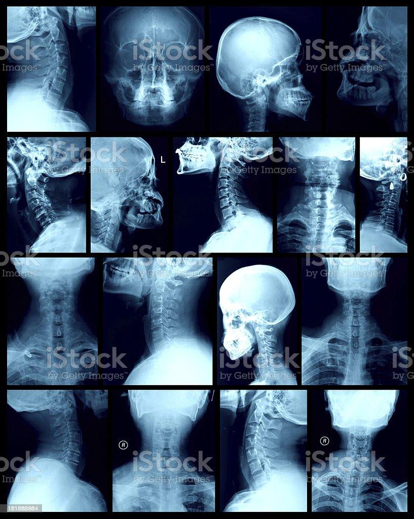 head X-ray image stock photo