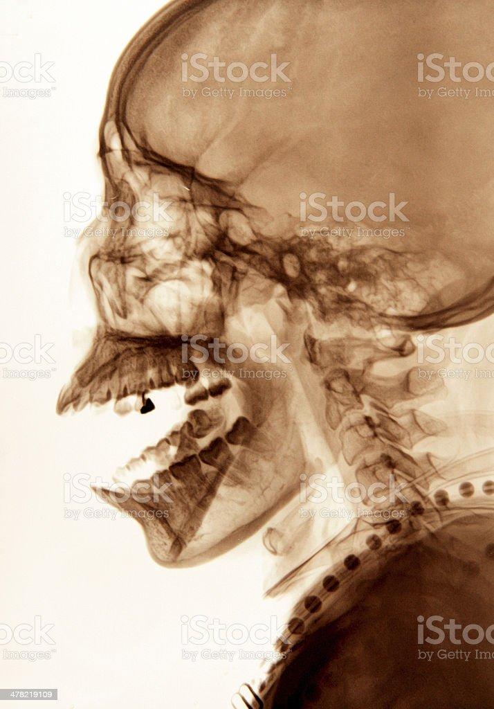 head X-ray image royalty-free stock photo