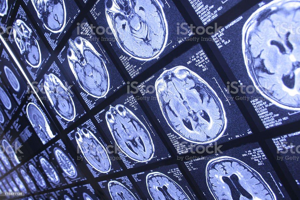 head x-ray royalty-free stock photo