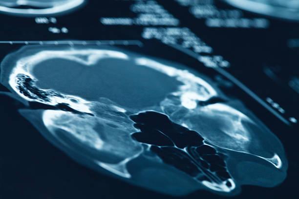 head x-ray. stock photo