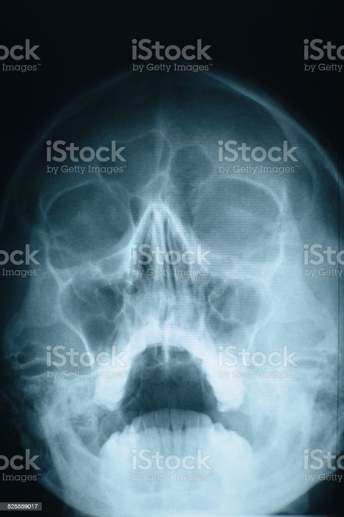 Head xray stock photo
