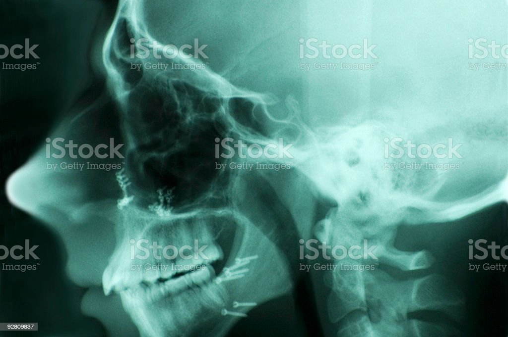 Head X-Ray with Screws I royalty-free stock photo