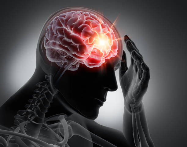Headache - conceptual artwork - 3d illustration 3D render of a man with strong pain in head - Grayscale Image bad news stock pictures, royalty-free photos & images