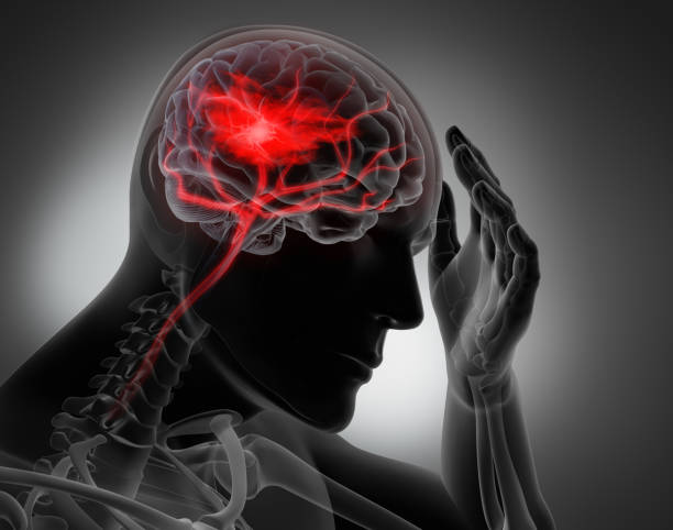 Headache - conceptual artwork-3d illustration Headache and Brain Stroke - conceptual artwork - 3d illustration - Grayscale Image neuroscience patient stock pictures, royalty-free photos & images