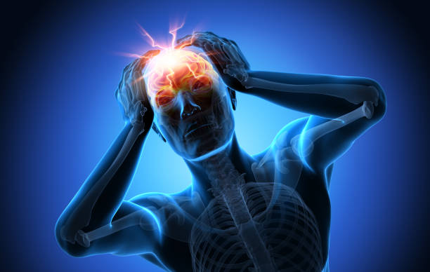 Ilustración de headache-conceptual-3d - foto de stock