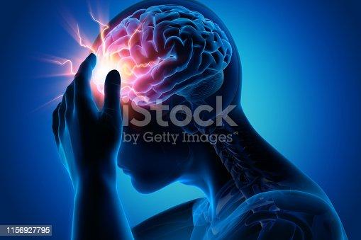istock Headache-conceptual artwork-3d illustration 1156927795