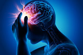 istock Headache-conceptual artwork-3d illustration 1156927795
