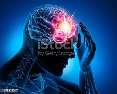 Starke Kopfschmerzen - Migräne - Medizinische Illustration - 3D Rendering