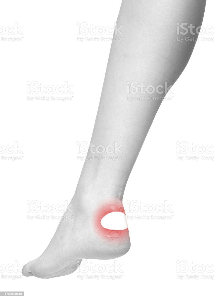 Healing blister on the heel. royalty-free stock photo