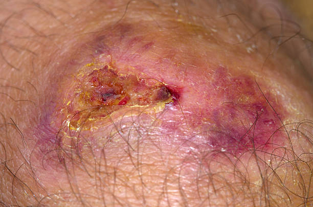 healing wound - open wounds stock photos and pictures