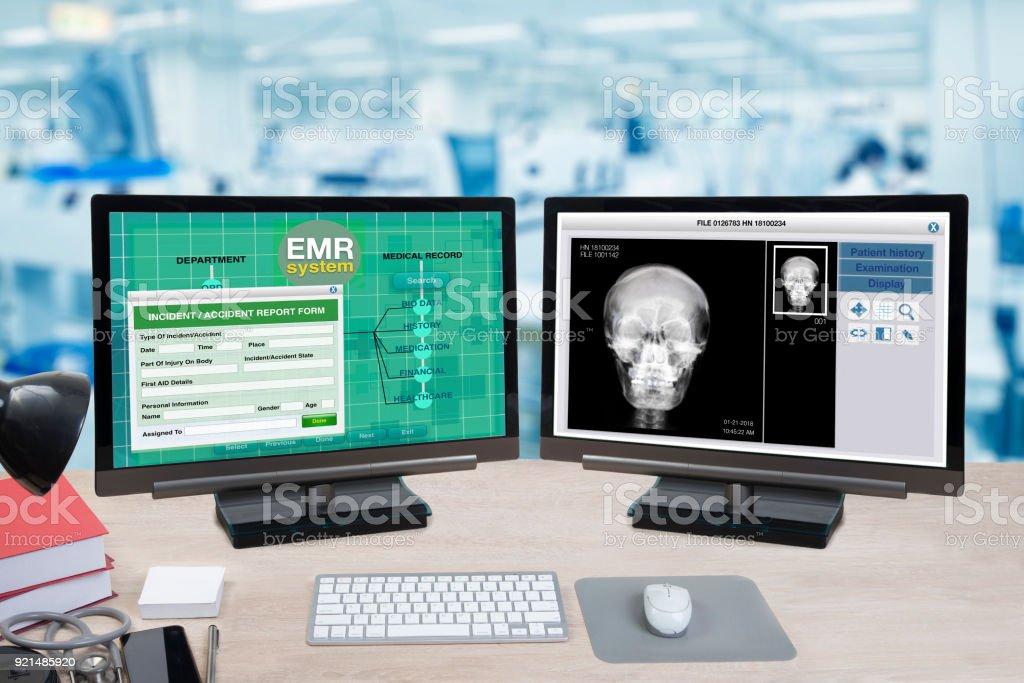 Informações de saúde e paciente, raio-x mostram em dois monitores de computador. - foto de acervo