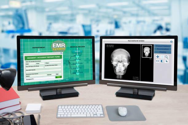 informações de saúde e paciente, raio-x mostram em dois monitores de computador. - dois objetos - fotografias e filmes do acervo