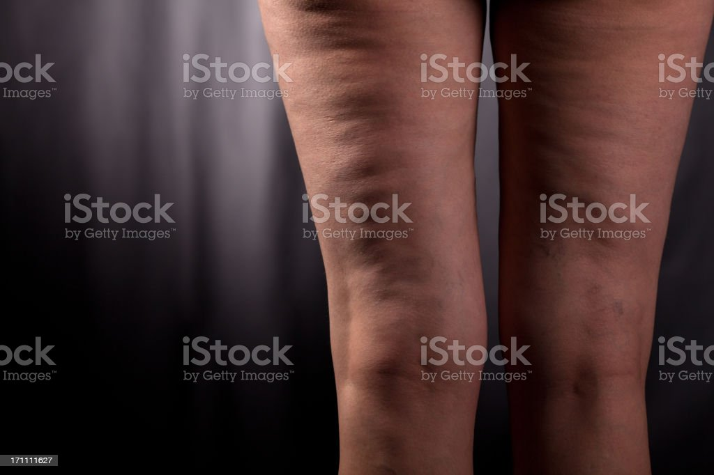 Health problem - cellulite stock photo