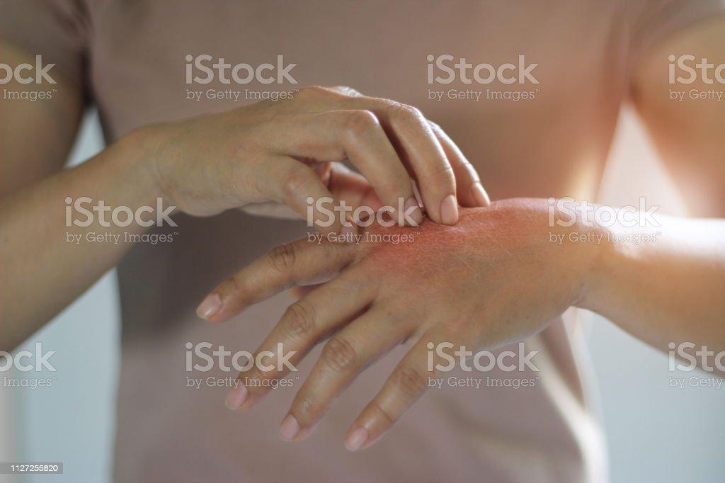 Concept de soins de santé et médical. Femelle de gratter les démangeaisons sur sa main, cause des démangeaisons causées par les maladies de la peau, sécheresse de la peau, allergie, chimique, allergique au détergent ou détergent à vaisselle liquid - Photo de Peau libre de droits