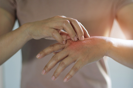Healthcare And Medical Concept Female Scratching The Itch On Her Hand Cause Of Itching From Skin Diseases Dry Skin Allergy Chemical Allergic To Detergent Or Dishwashing Liquid And Dermatitis Insect Bites Burned Drug Health Problem Stock Photo - Download Image Now