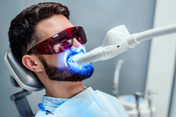 Healthcare and medicine concept. Close up view of man undergoing laser tooth whitening treatment to remove stains and discoloration. only young men stock pictures, royalty-free photos & images