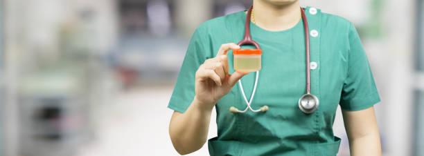 Konzept für Gesundheit und Medizin. Urologist Labor Arzt Techniker gibt Urin-Untersuchung Test für Urin-Analyse, selektiver Fokus, Vintage-Farbe – Foto