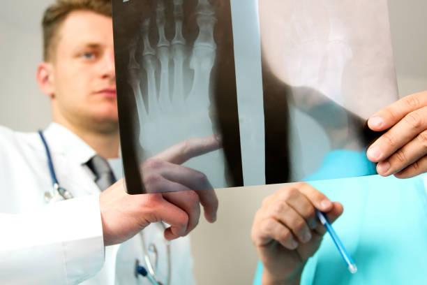 Gesundheitswesen, Medizin und Radiologie Konzept - männliche Ärzte Röntgen des Fußes zu betrachten – Foto