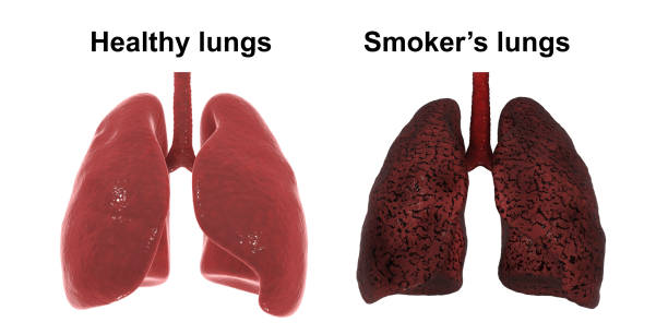 Healthy and smoker's lungs isolated on white background, medical concept stock photo