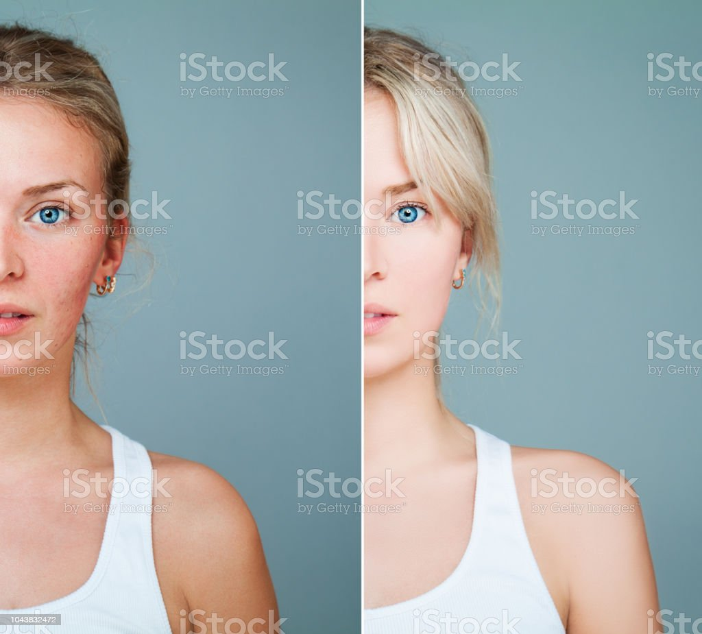 Healthy and Unhealthy Skin Concept. Young Model Woman with Skin Problem. Facial Treatment, Skincare, Medicine and Cosmetology Concept stock photo